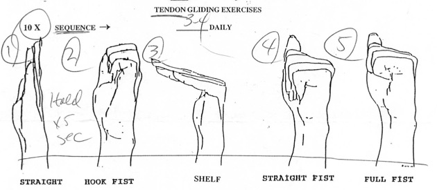 Tendon Gliding Exercise